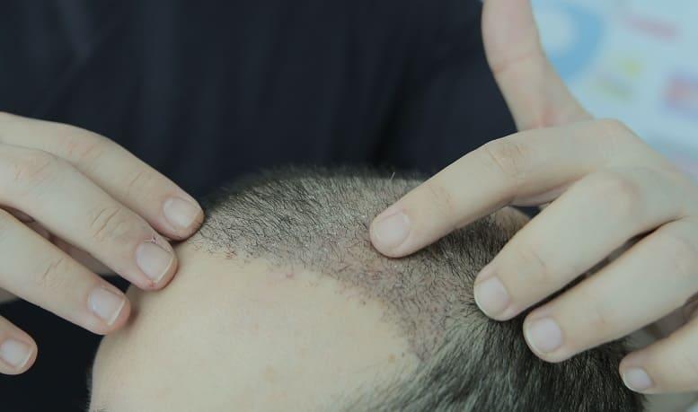 Eigenhaartransplantation als dauerhafte Lösung bei Haarausfall im Sommer