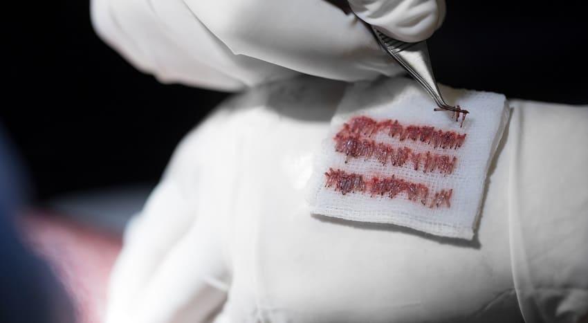 Geschichte der Haartransplantation