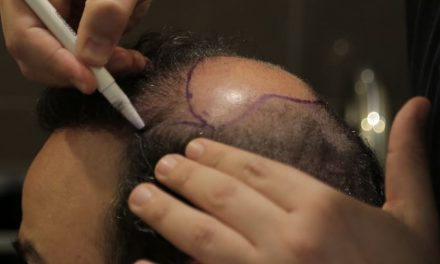 Haartransplantation mit Laser – eine effiziente Methode bei Haarausfall?