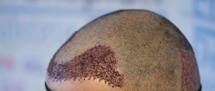 Haartransplantation mit Laser bei androgener Alopezie