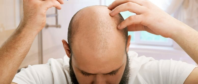 Mann mit Halbglatze - Mann will vollen Haarschopf anstatt Khalkopf