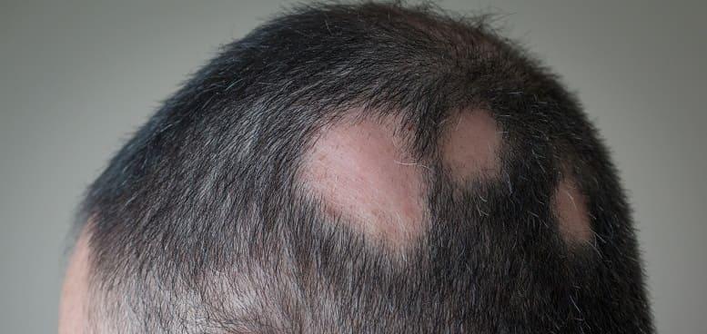 Haartransplantation Erfolg Kreisrunder Haarausfall bei Männer