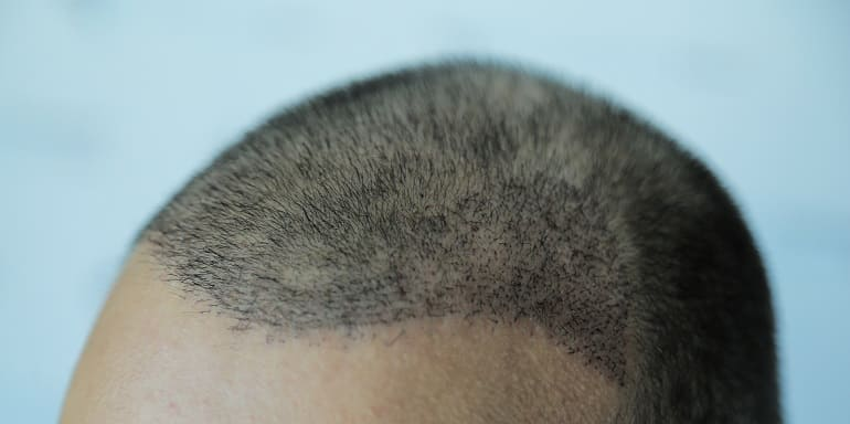 Lösung mit Haartransplantation Nachhaltigkeit