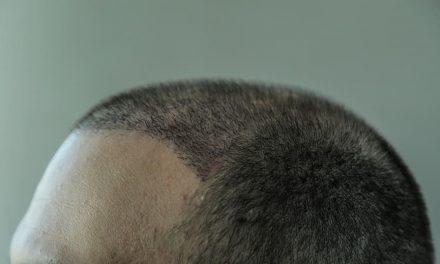 Nach der Haartransplantation – die Haare fallen wieder aus