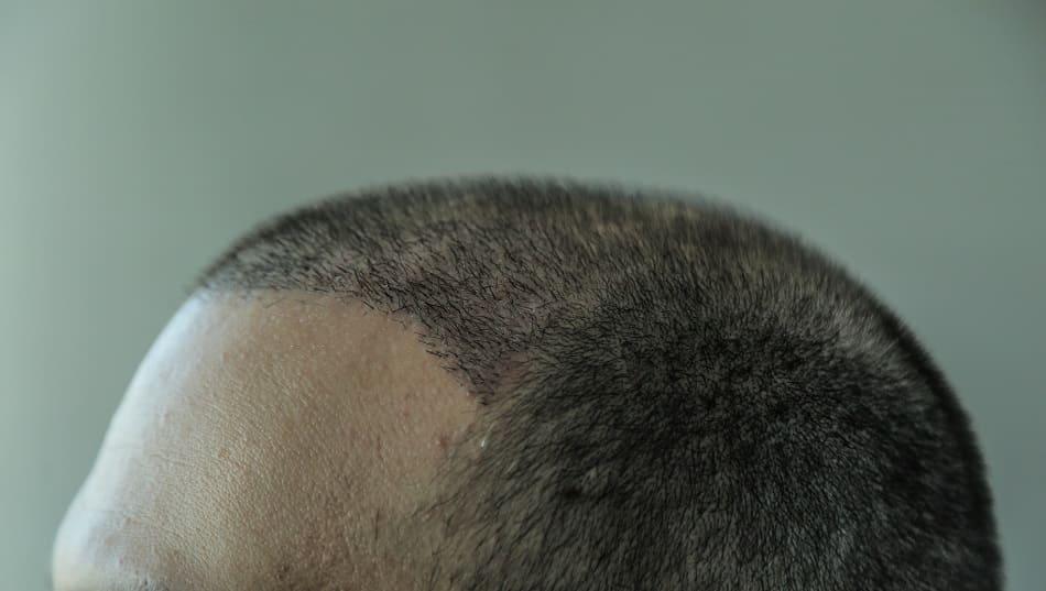 Nach der Haartransplantation Haare fallen wieder aus?