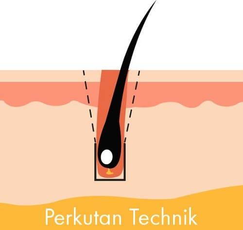 Perkutan FUE Technik