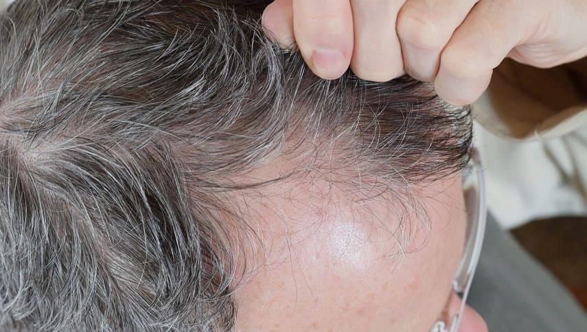 So siehteinseitiger Haarausfallaus