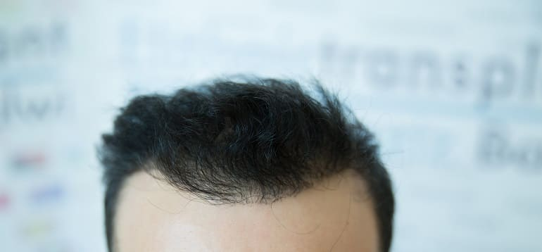 Vorteile einer Haartransplantation
