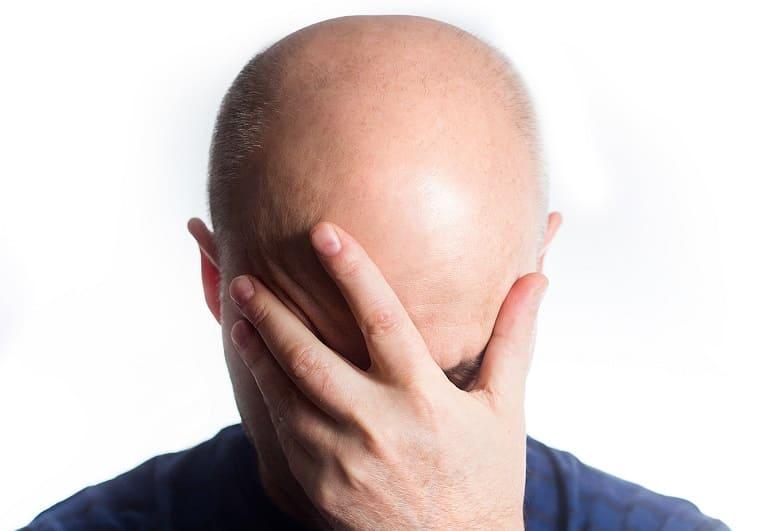 jahreszeitbedingte Glatzenbildung was tun Haarausfall in Sommer