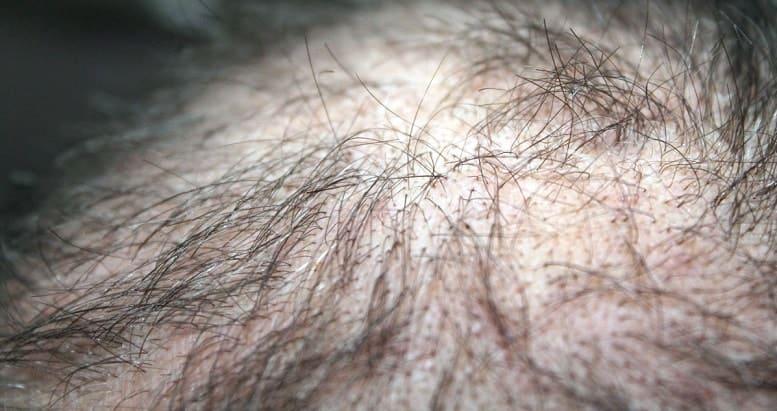 Haarausfall rückgängig - Übersäuerung der Kopfhaut