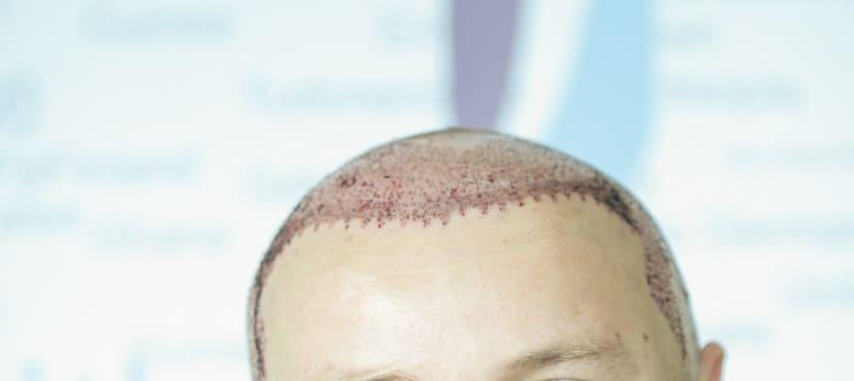 Attraktiv trotz Haarausfall - Haartransplantation dauerhafte Lösung bei Haarausfall Geheimratsecken
