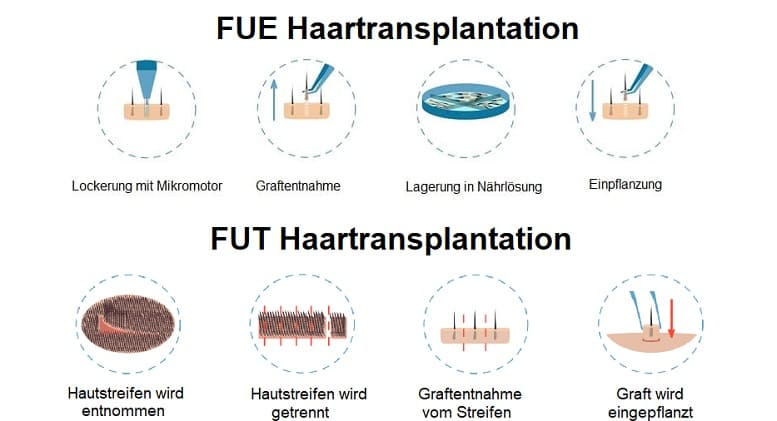 Haaransatz beim Mann - FUE & FUT Haartransplantationsmethoden