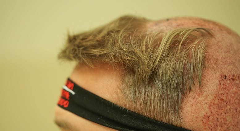 Juckende Kopfhaut - Haartransplantation bei Haarausfall im Tonsur, Graftsentnahme aus Spenderbereich