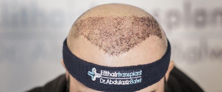 Haartransplantation als Lösung bei Sonnendrand auf der Kopfhaut