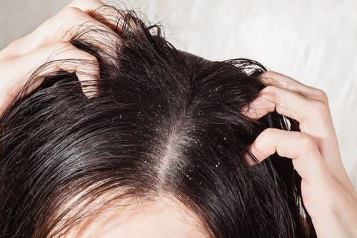 Juckende Kopfhaut bei Frauen