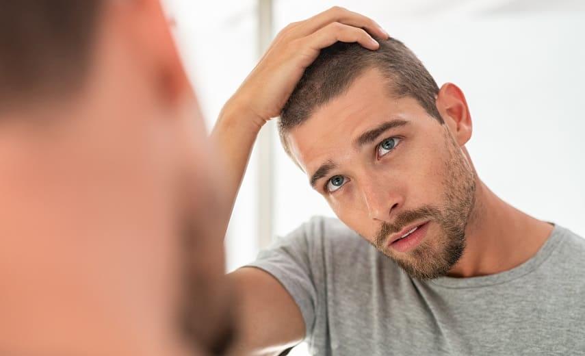 Juckende Kopfhaut Junge Mann vor dem Spiegel schaut seine Kopfhaut an