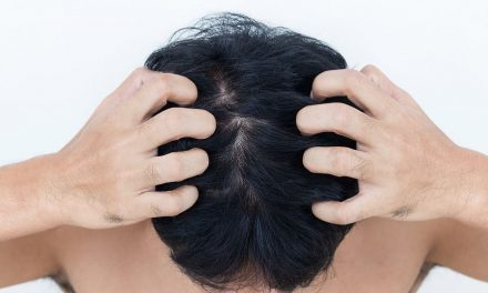 Kopfhaut Pilz – Haarausfall durch Infektion mit Tinea capitis