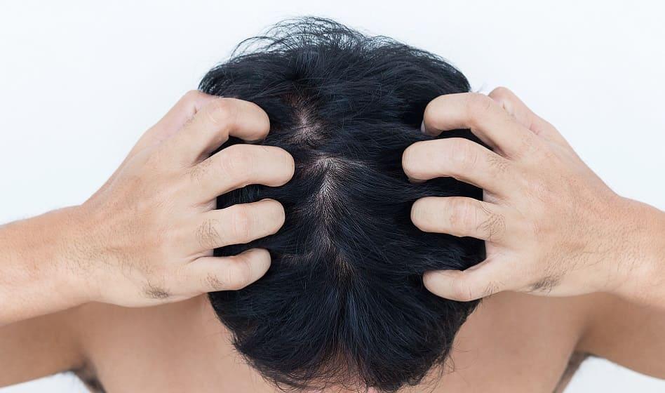 Kopfhaut Pilz - Junge mann zeigt seine Kopfhaut