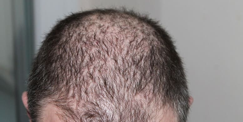 Spannungshaarausfall - lichte Haare