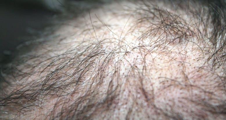 Haare Diagnose - Vernarbender Haarausfall