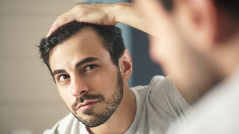 selbstverständlich attraktiv trotz Haarausfall - Vor dem Spiegel Geheimratsecken sieht Junge Mann