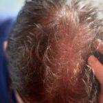 Folliculitis decalvans Therapie: Was du darüber wissen solltest