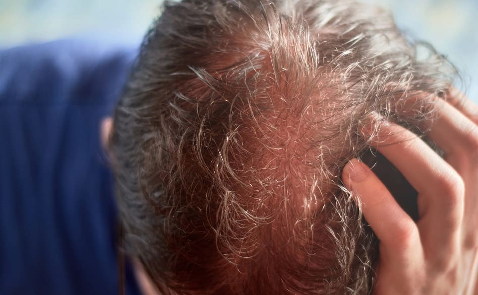 Folliculitis decalvans Therapie - lichte Haare