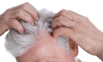 Wie eine Haartransplantation grauen Haaren die Stirn bietet