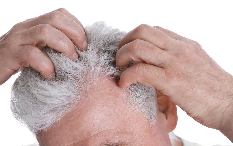 Haartransplantation bei grauen Haare - Geheimratsecken