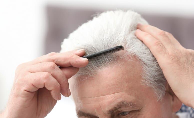 graue Haare meist mit Haarausfall - Mann kämmt seine Haare