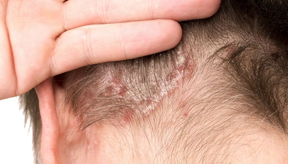 Kopfhauterkrankungen mit Haarausfall - Juckende Kopfhaut beim Mann