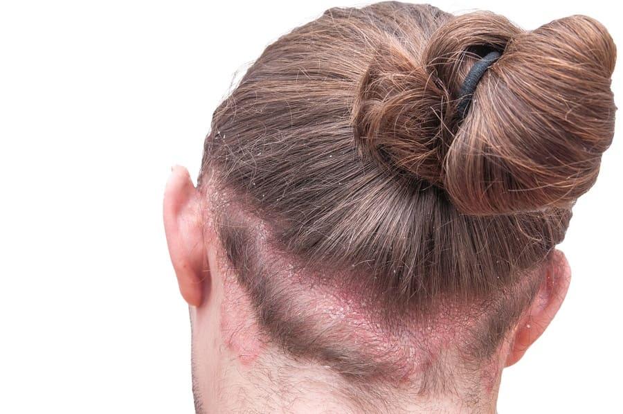 Kopfhauterkrankungen mit Haarausfall - Juckende Kopfhaut hinter dem Kopf