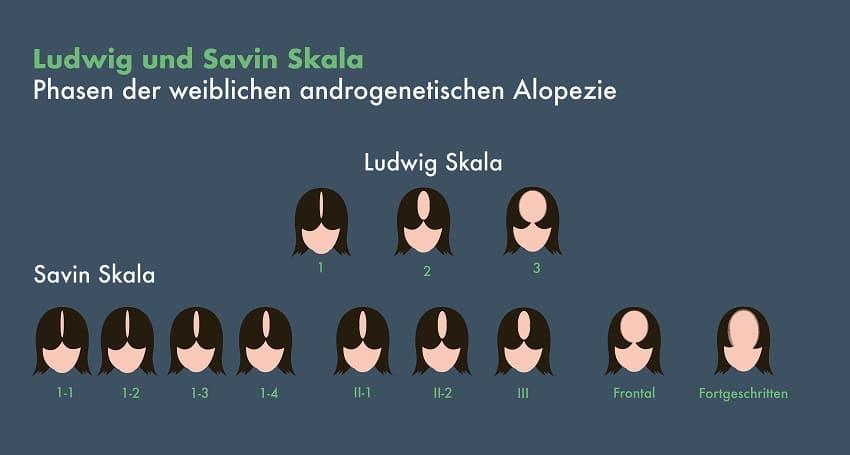 Phasen des Haarausfalls nach Ludwig und Savin Skala