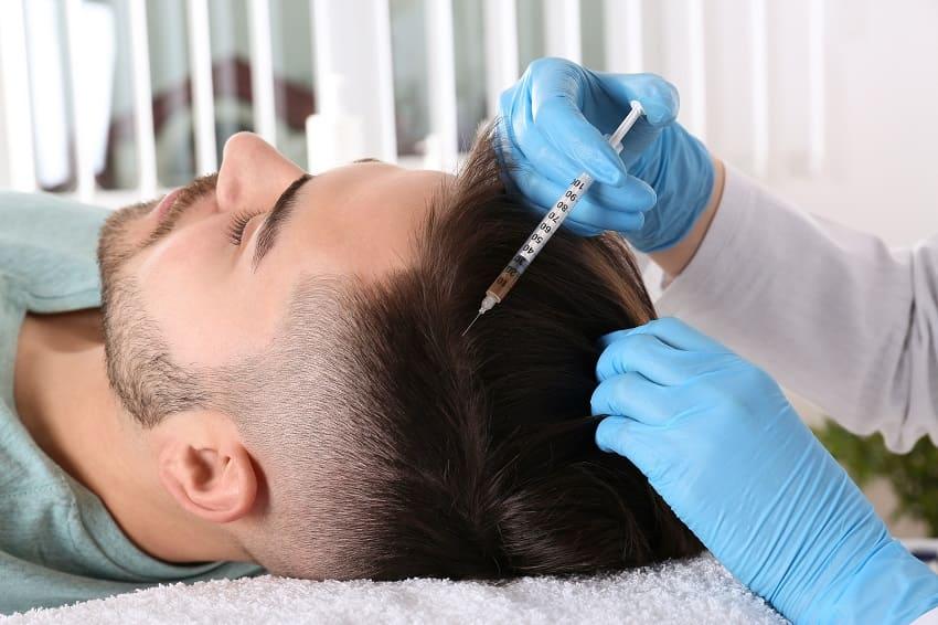 Junger Mann erhaelt PRP Behandlung gegen Haarausfall