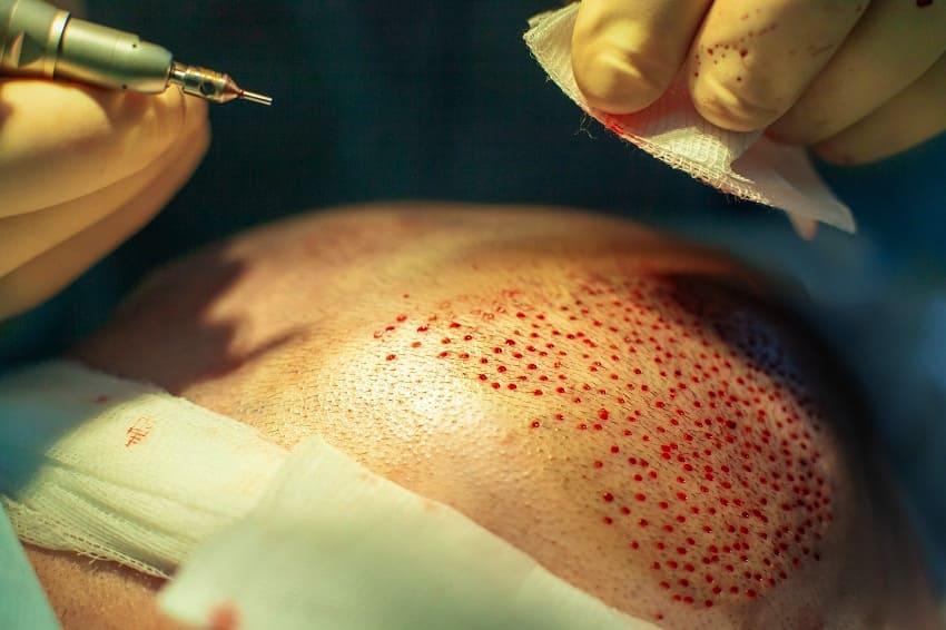 Mann mit Haarausfall erhält eine Haartransplantation