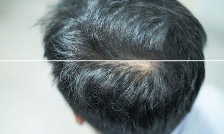 Ist Streuhaar schädlich für Haare und Haut?