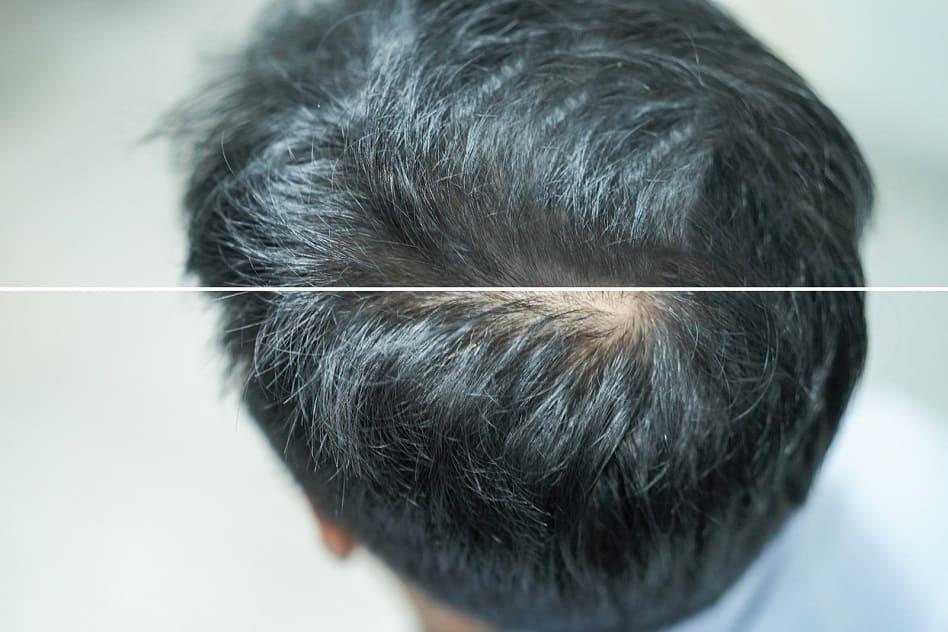 Streuhaar um Haarausfall zu kaschieren