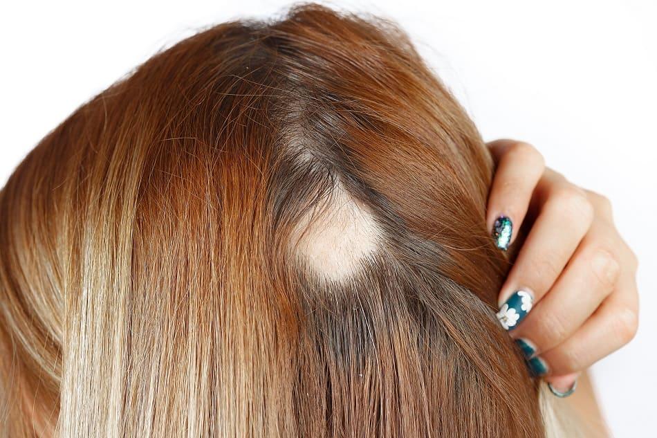 Frau hat am Hinterkopf kreisrunden Haarausfall
