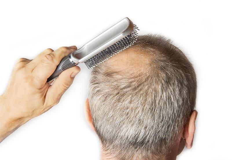 Mann leidet unter dem Haarausfall und kämmt seine Haare