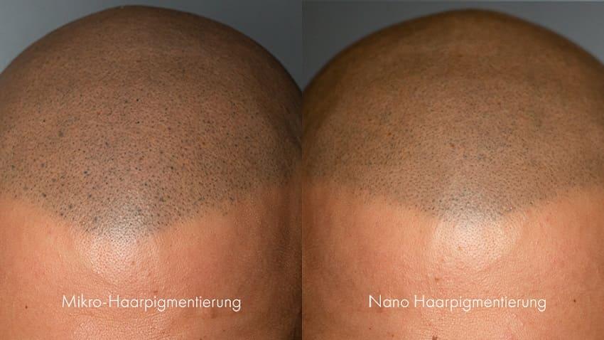 Haarlinien Unterschiede der Haarpigmentierung