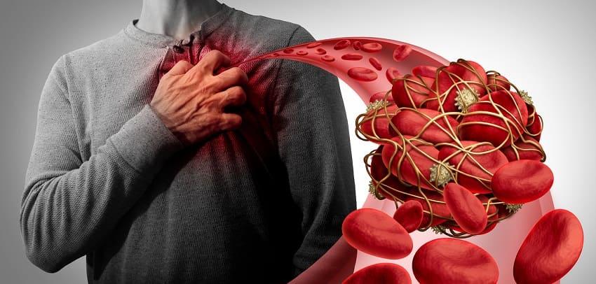 Illustration von Blutverklumpungen