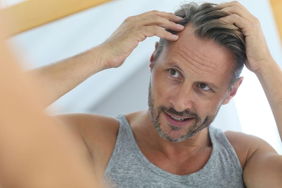 Mann betrachtet im Spiegel seinen genetischen Haarausfall