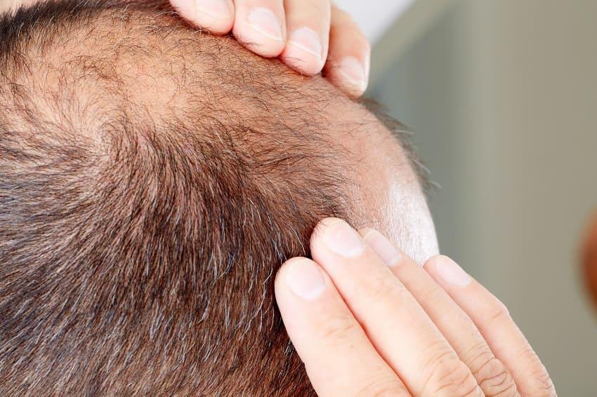 Mann leidet unter Haarausfall