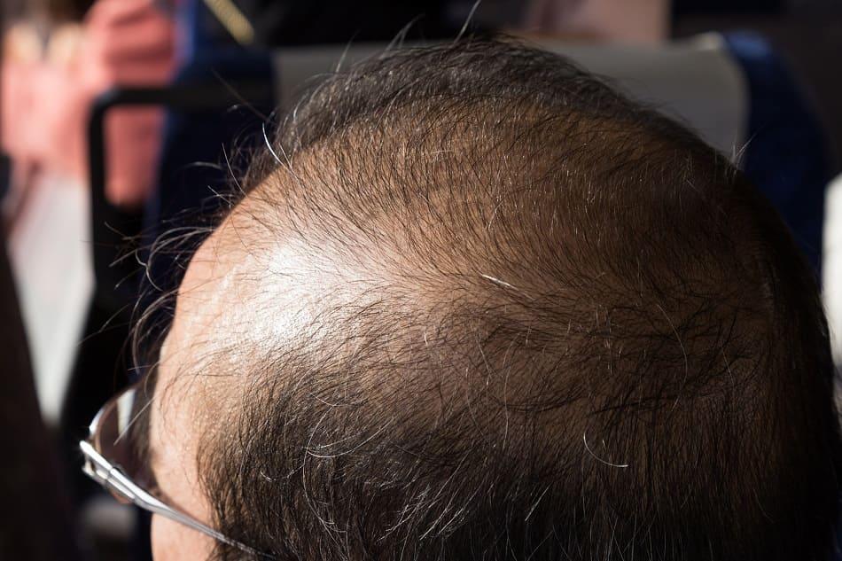 Mann mit diffusem Haarausfall von der Seite