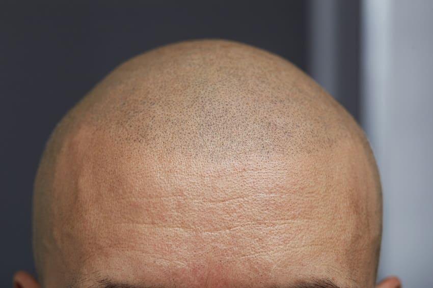 Frontale Ansicht nach einer Haarpigmentierung