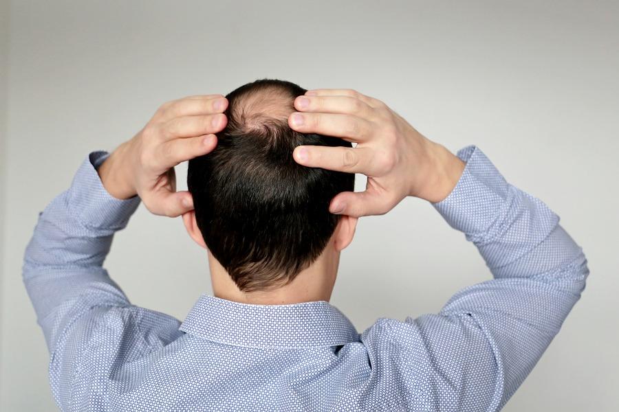 Haartransplantation bei einer Tonsur