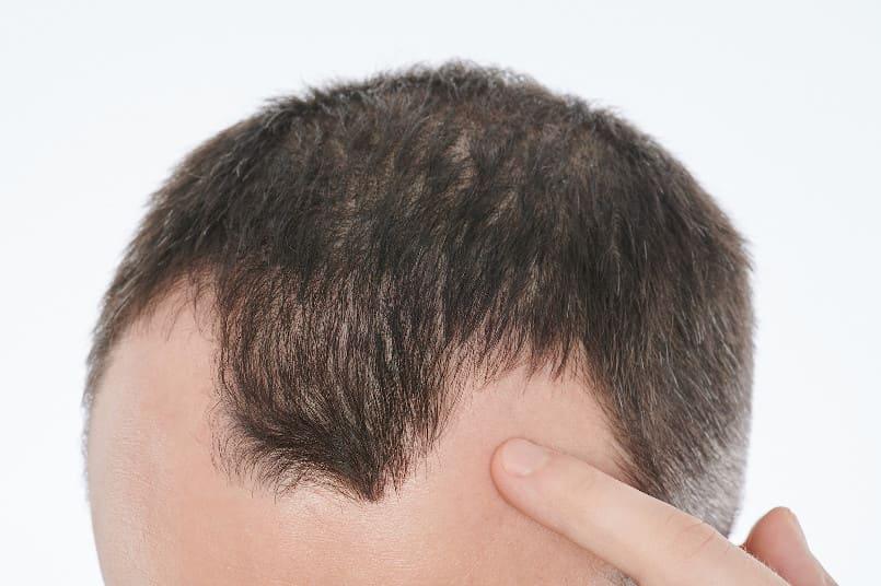 Nahaufnahme des Kopfes eines Mannes mit Haarausfall