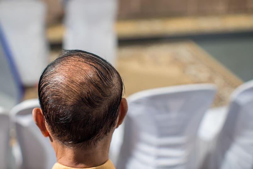 Hinterkopf eines Mannes mit aplasia pilorum