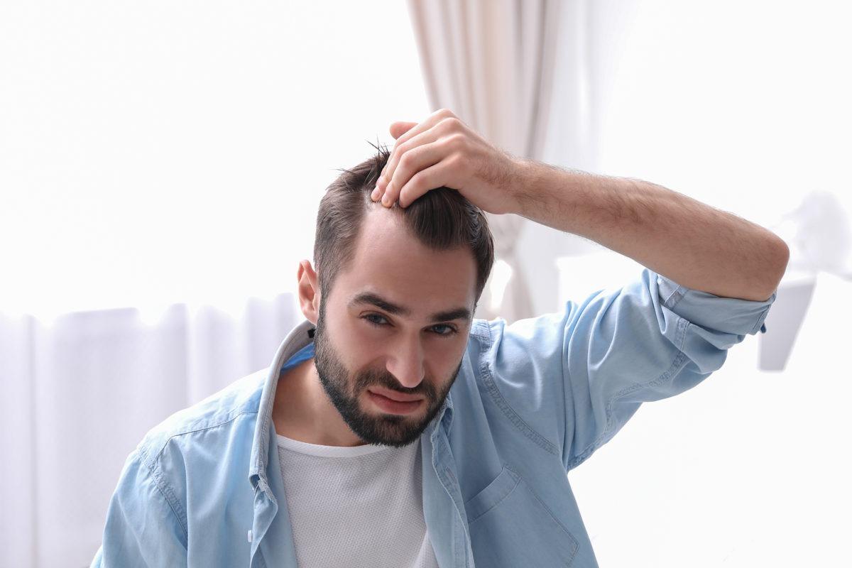 Erblich-bedingter Haarausfall