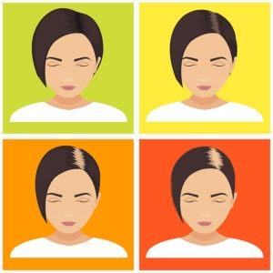 Erblich-bedingter Haarausfall Frauen